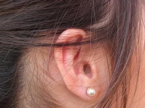 耳に水がたまったような感覚 – 滲出性中耳炎